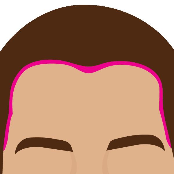 Frente (Hairline)